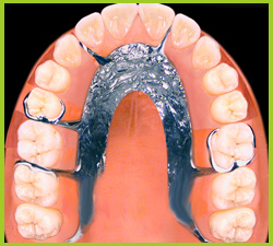 Partial or full denture. Preparing teeth.